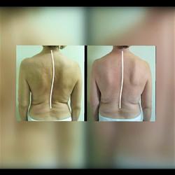 Straighter Spine