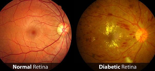 Diabetic-Retina.jpg