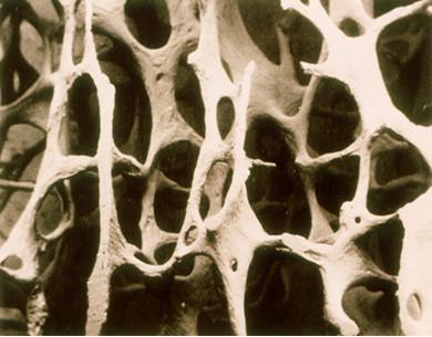121. 뼈문(骨門)이 막히면 골수와 진액이 말라 고질병이 찾아온다