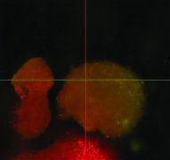Post-exposure of biofilm to super-oxidised solution in vitro