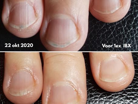 5 tips om te stoppen met nagelbijten.