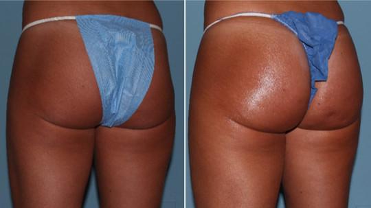 butt-lift-before-after-photos.jpg