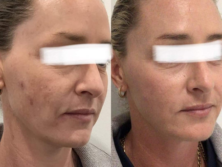Professional skin treatments & home care for maintaining healthy, youthful skin.