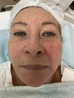 Anti-Aging Dark Spot Removal