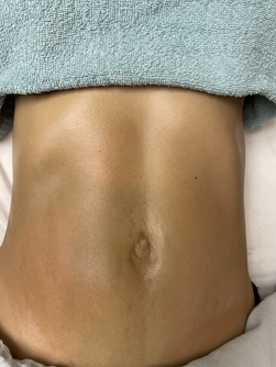 Slimming abdominal massage