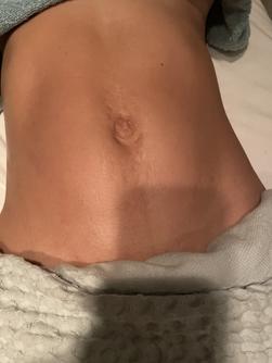 Slimming abdominal massage - Before