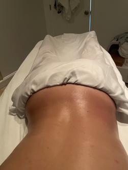 Cavitation Treatment with Shaping Massage / Before
