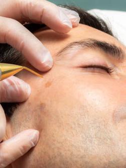 Fibrolasting Procedure