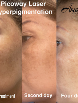Picoway Laser Hyperpigmentation.JPG