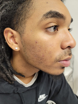 Acne Scarring Before Treatment