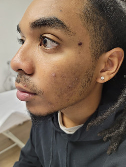 Acne Scarring Treatment Before second session