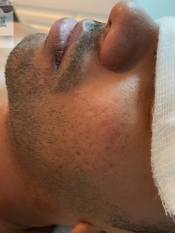 Acne Scarring Treatment 2of2