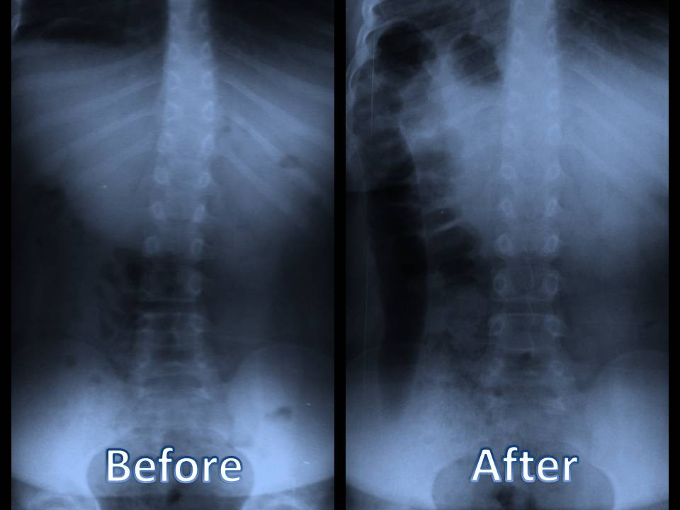 before and after photo of Scoliosis chiropractor treatment