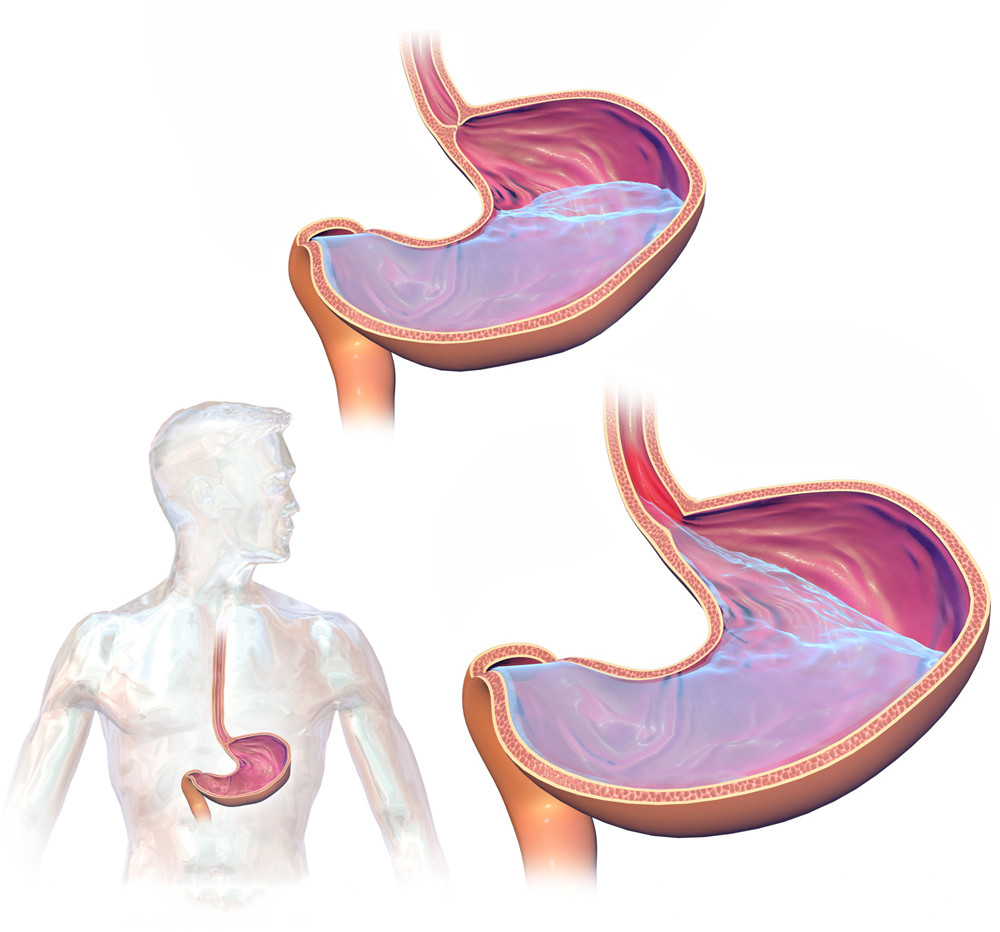 illustration of stomach and GERD