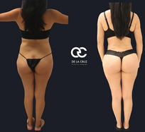 best liposuction in houston texas.png