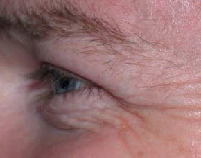 BOTOX Injection for the Wrinkles Around Your Eyes (Crow's Feet)