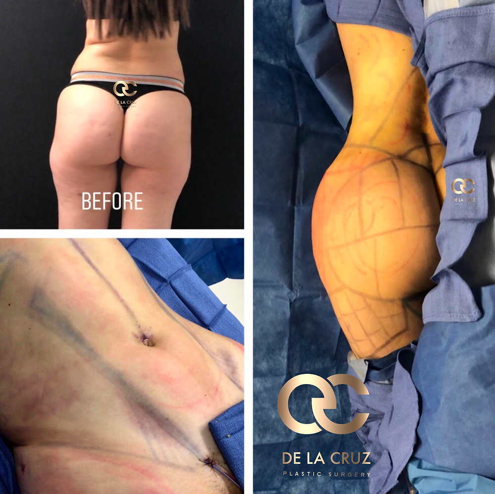 Vaser Liposuction with fat transfer to the buttocks performed by Dr. De La Cruz