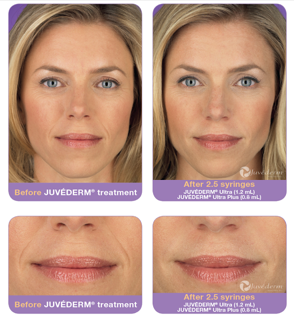 Dermal Filler Injection Before After Photos | Plastic Surgeon in