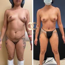 best tummy tuck surgeon abdominoplasty USA Houston Texas.png