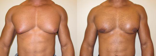 Gynecomastia surgery man boob breast surgery houston 77056.png