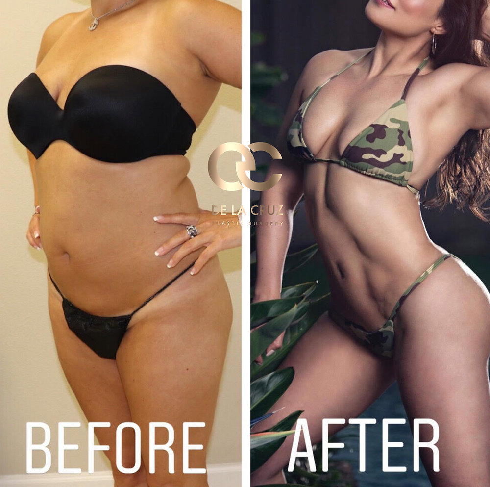 Before and after 4D VASER Liposuction performed by Dr. De La Cruz.