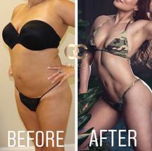 best liposuction in houston hi-def lipos