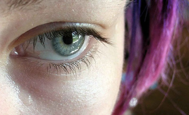 Lagophthalmos: An Eyelid Surgery Complication