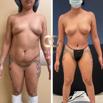 best tummy tuck surgeon abdominoplasty USA Houston Texas.jpeg