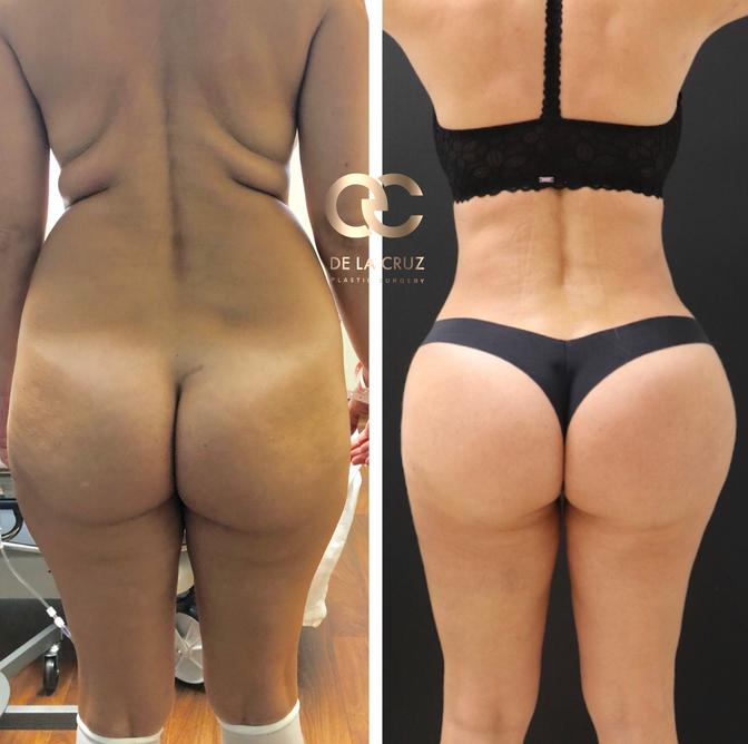 Fat Resorption after Brazilian Butt Lift surgery