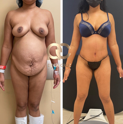 best tummy tuck Before and After Photos Houston USA.png
