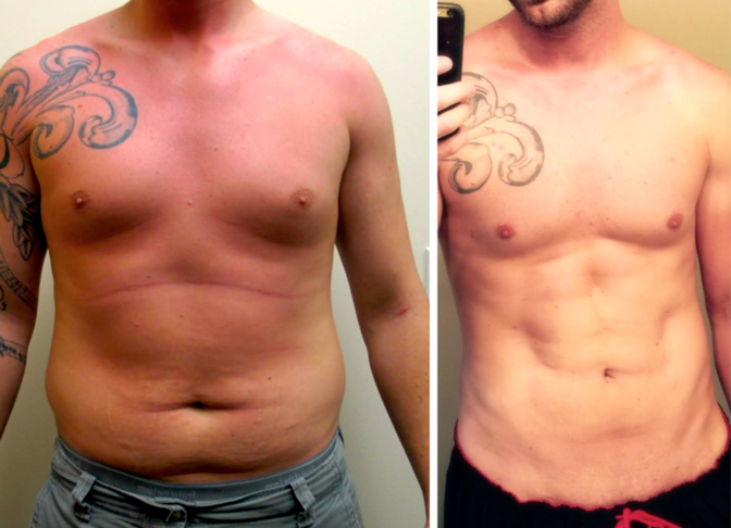 Defining your Six-packs Abs with Hi-Def VASER Liposuction