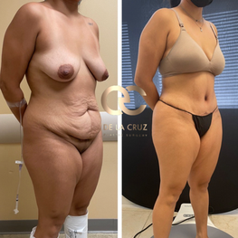best tummy tuck abdominoplasty in USA Houston Texas.png