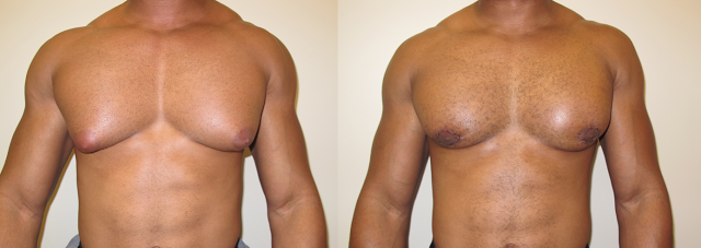 Male Breast Reduction for Gynecomastia