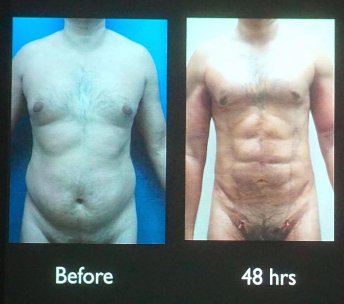 4D VASER High Definition Liposuction with Dr. Alfredo Hoyos and Dr. De La Cruz