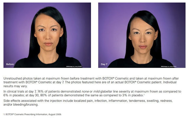 Botox Injection Before & After Photos