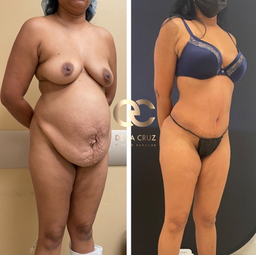 Best tummy tuck before and after photos USA Houston Texas.png