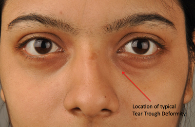 Hyaluronic Acid Injections for Tear Trough Deformities