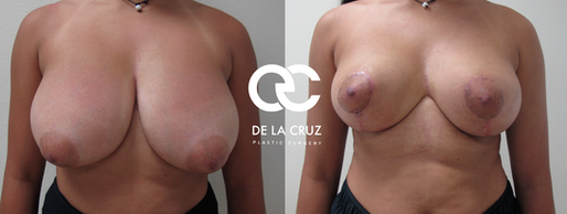 breast lift houston breast reduction houston.png