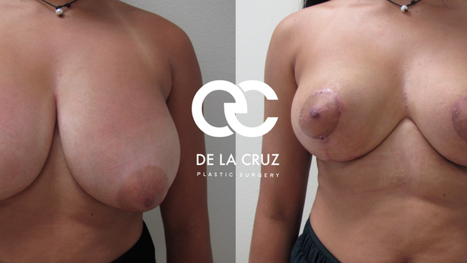 Breast Revision Surgery to Recover a Youthful Breast Contour