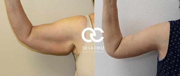 arm lift brachioplasty houston tx.png