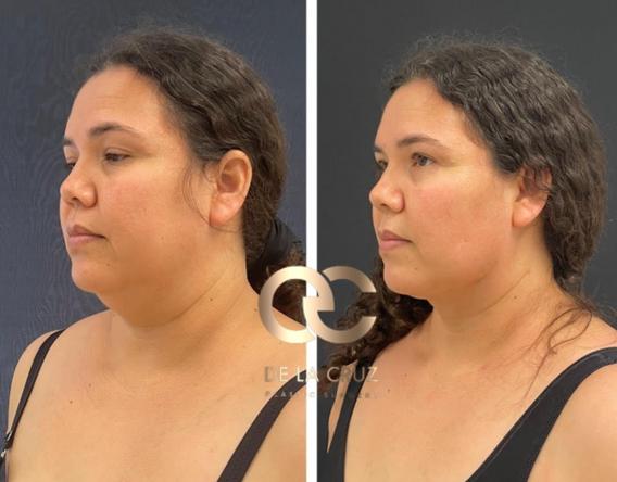 Best facetite necktite liposuction morpheus 8 delacruzplasticsurgery.png