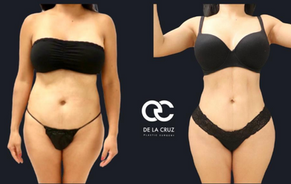 best liposuction in texas.png