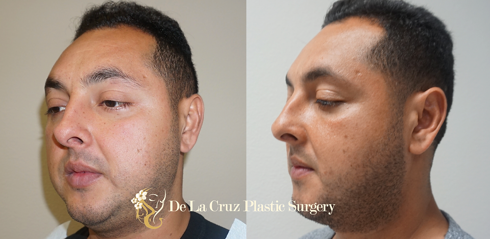 Before & After Buccal Fat Removal performed by Dr. Emmanuel De La Cruz