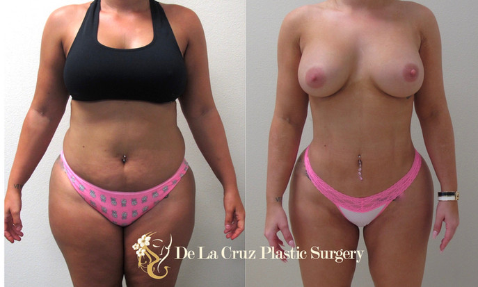 4D VASER High-Definition Liposuction performed by Houston Plastic Surgeon Emmanuel De La Cruz MD