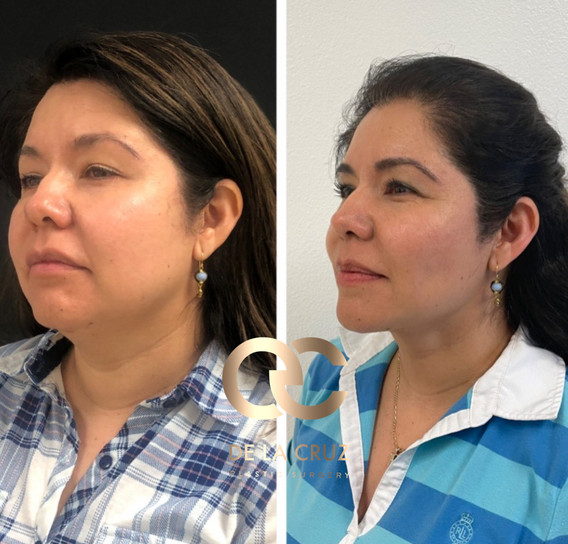 best neck liposuction necktite buccal fat removal before and after.png