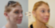 sculptra treatment face.png