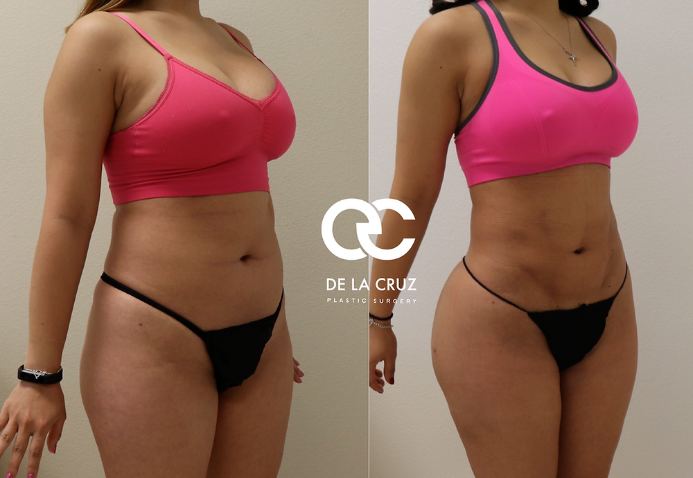 Before and After 4D VASER Liposuction with fat transfer to the buttocks (BBL) performed by Dr. De La Cruz