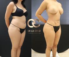 best liposuction.jpg