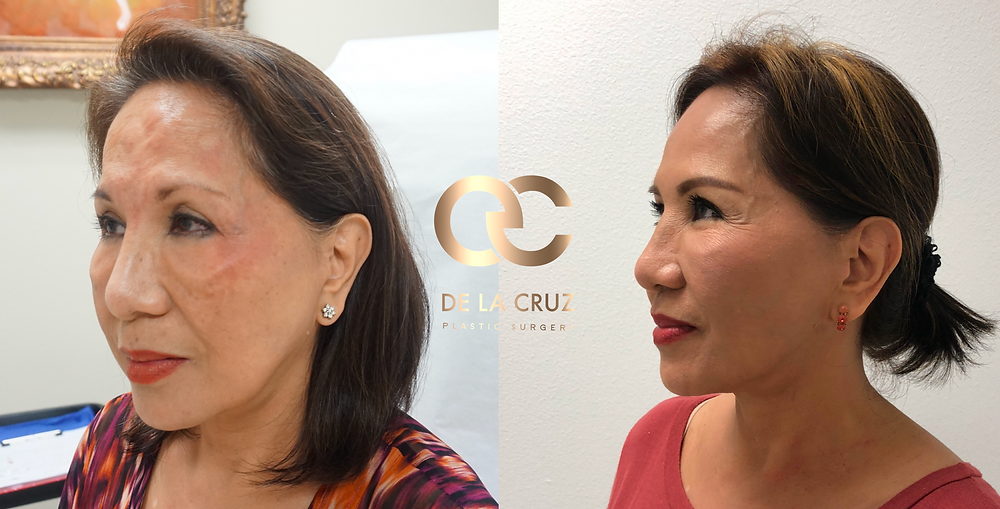 Before & After Embrace RF performed by Dr. De La Cruz.