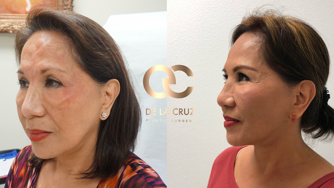Renuvion vs. FaceTite: The Latest and Most Effective, Non-Surgical Alternatives to Facelift